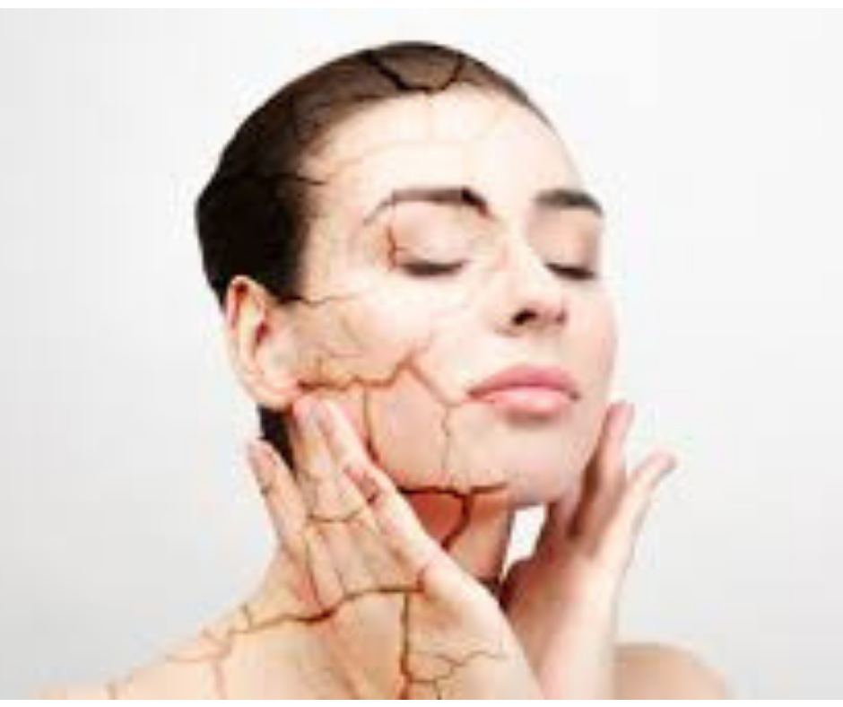 HOW TO DEAL WITH DRY SKIN?